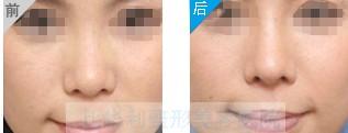 自體組織隆鼻對比圖