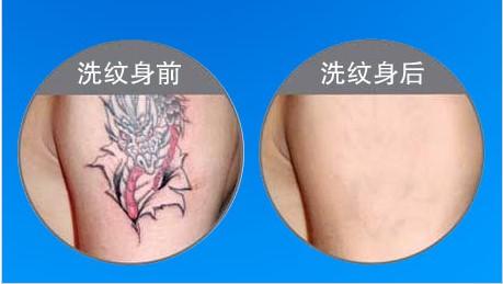 激光洗纹身效果好,见效快人为的将颜料刺入皮肤,勾画成图案,称为纹身.