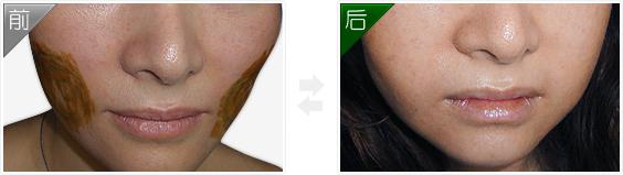 自體脂肪填充面頰部成功案例