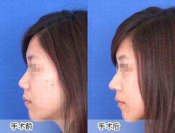 分體式專利隆鼻成功案例