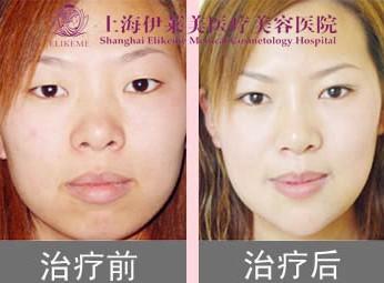 V12改脸术成功案例