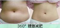 水动力吸脂减肥成功案例