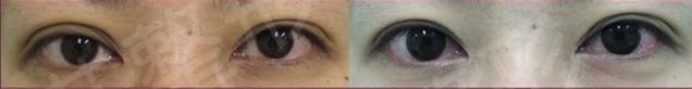 SRS双眼皮失败修复术成功案例
