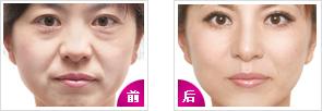 玻尿酸除皺成功案例