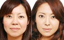 下颌角磨骨术成功案例