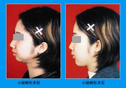 鼻唇沟填充成功案例