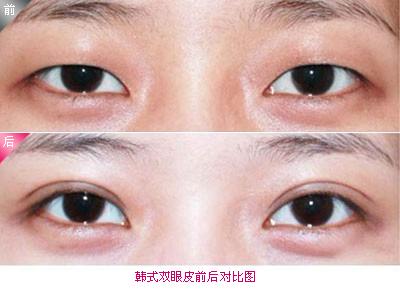 雙眼皮手術成功案例