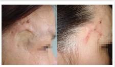 激光祛疤手术成功案例