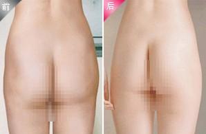 臀部抽脂成功案例
