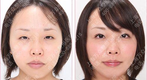 韩式双眼皮案例
