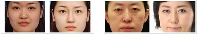 精细改脸形成功案例