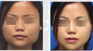 下颌角整形手术成功案例