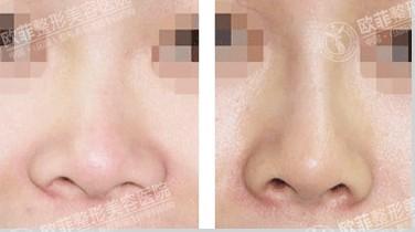 伊维兰注射隆鼻成功案例