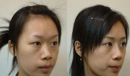 低鼻整形成功案例