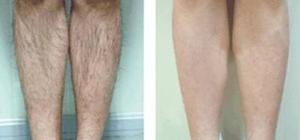 腿部华尔兹冰点脱毛成功案例