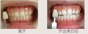 冷光牙齿美白技术成功案例