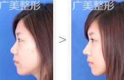 隆鼻手术成功案例