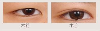 双眼皮手术成功案例