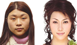 中盛改臉型手術成功案例