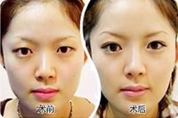 明眸翘睫双眼皮成功案例
