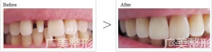广美美容冠矫正牙齿手术成功案例