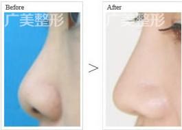 广美爱贝芙隆鼻手术成功案例