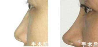 玻尿酸注射隆鼻成功案例