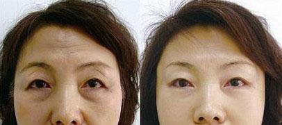 提眉手术成功案例图片