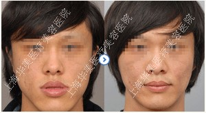 上海华美厚唇变薄术成功案例