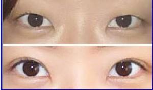 开眼角手术成功案例
