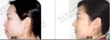 隆鼻修復成功案例