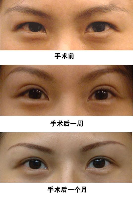 重瞼整形術成功案例