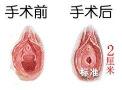 處女膜修補術成功案例