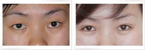 生物焊接雙眼皮成功案例