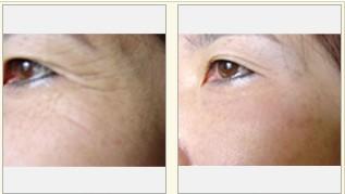 激光眼部除皺術成功案例