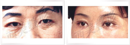 微創小切口除皺術成功案例