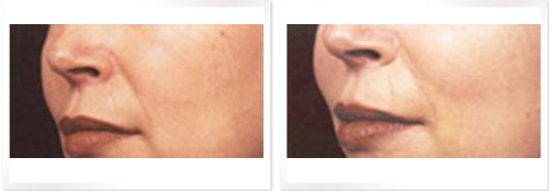 強脈沖光緊膚除皺成功案例