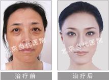 光子嫩膚成功案例