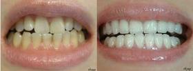 激光美白牙齿的成功案例