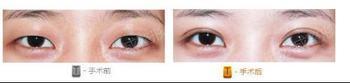 欧式双眼皮成功案例