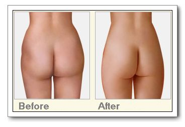自体脂肪丰臀术的成功案例