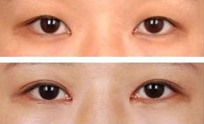 1+N多效雙眼皮的成功案例
