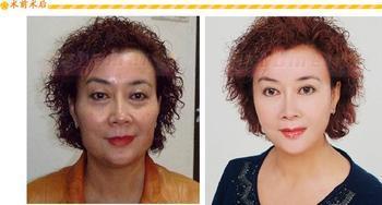 韩式改脸型皮成功案例