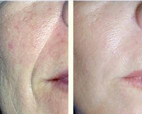 面頸部皮膚分離除皺術的成功案例