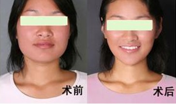 頰脂肪墊切除術瘦臉的成功案例