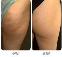 臀部溶脂的成功案例