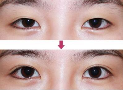 韩国翘睫双眼皮的成功案例