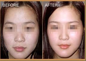 微晶美白皮膚治療的成功案例