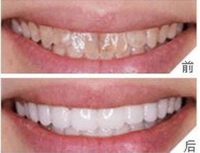 超声波洁烟熏牙的成功案例
