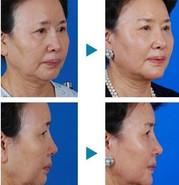面部微雕提升术的成功案例